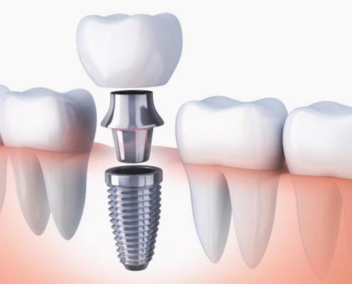 Clínica dental en Lucena y Antequera