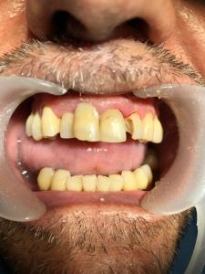 resconstrución diente